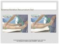 lesion-del-angulo-posterolateral-de-rodilla-dr-garcia-45-638